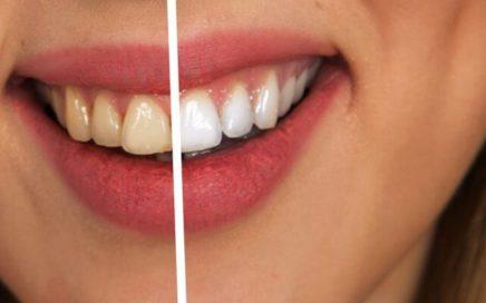 stomatologia-nad-sudolem-wybielanie-zebow
