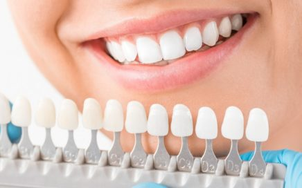wybielane-zębów-lampa-beyond