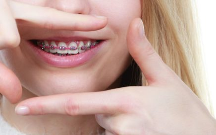 wizyta-u-ortodonty-stomatologia-nad-sudolem