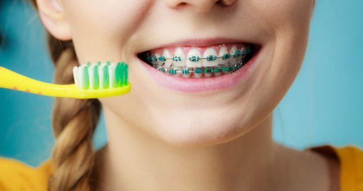 aparat-ortodontyczny-higiena-jamy-ustnej