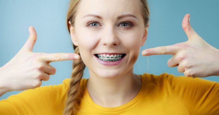 kto-powinien-nosic-aparat-ortodontyczny